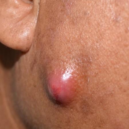 bolas de grasa en la cara