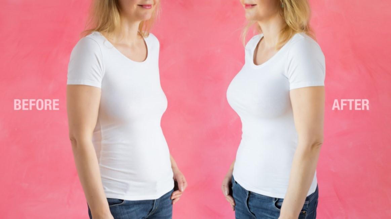 aumento de senos antes y despues lq