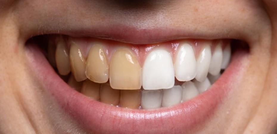 dientes amarillos blanqueamiento