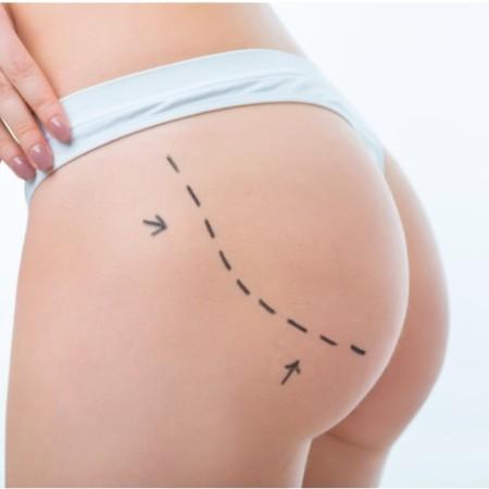 implante-gluteos