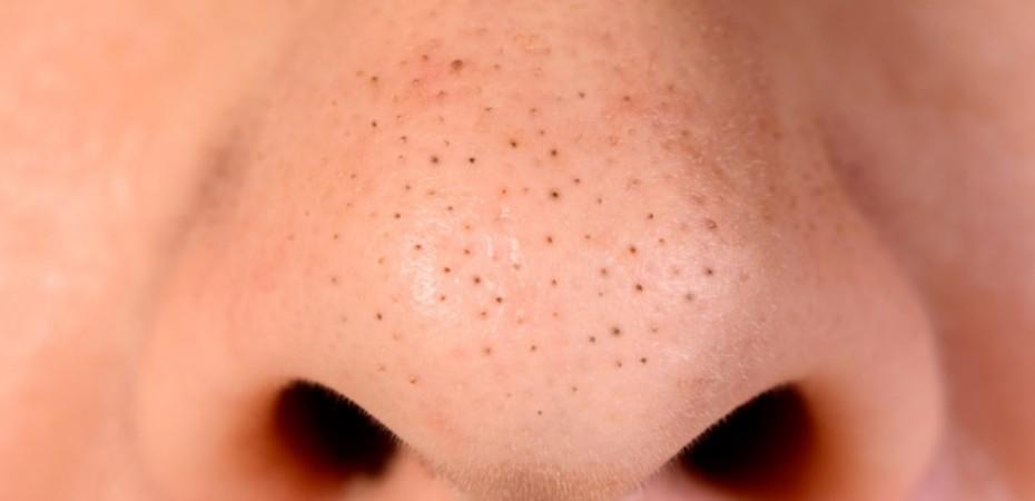 remedios-puntos-negros-nariz