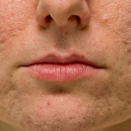 agujeros-acne