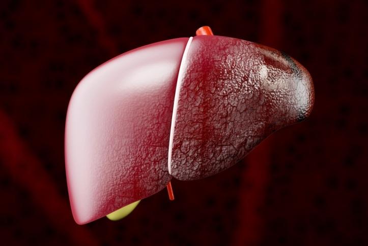 higado-cancer-cirrosis