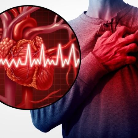 infarto-causas