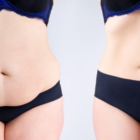 bajar de peso salud
