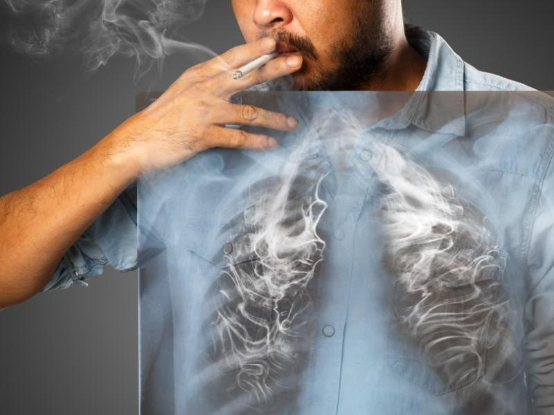 cancer de pulmon fumar