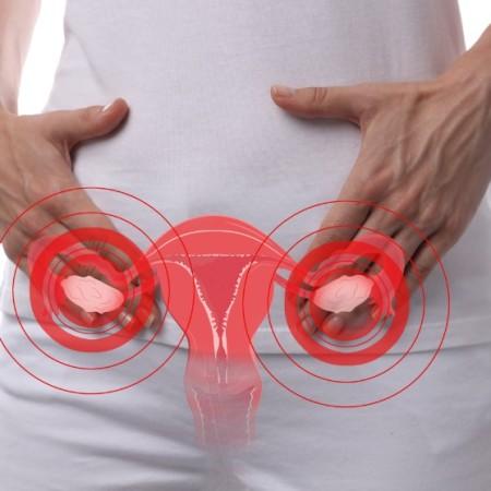 ovarios, mioma, utero, lq